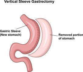 48053083 - vector illustration of vertical sleeve gastrectomy vsg
