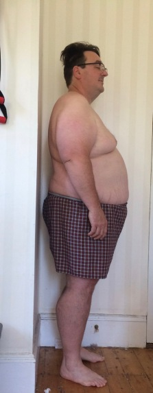 July 4, 2017 - The day before bariatric surgery. Side view, right..