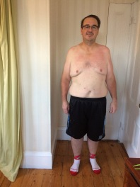 Dec. 3 2017 - Five months after gastric sleeve surgery, front view.