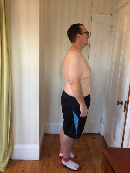 Dec. 3, 2017. Five months after gastric sleeve surgery. Side view, right.